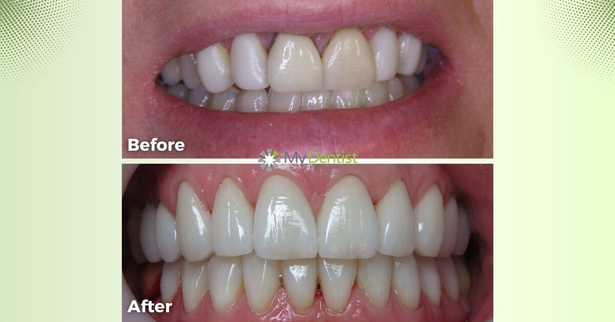Angela-Smile-Makeover-Journey_My-Dentist_Alderley_Before-and-After-Image