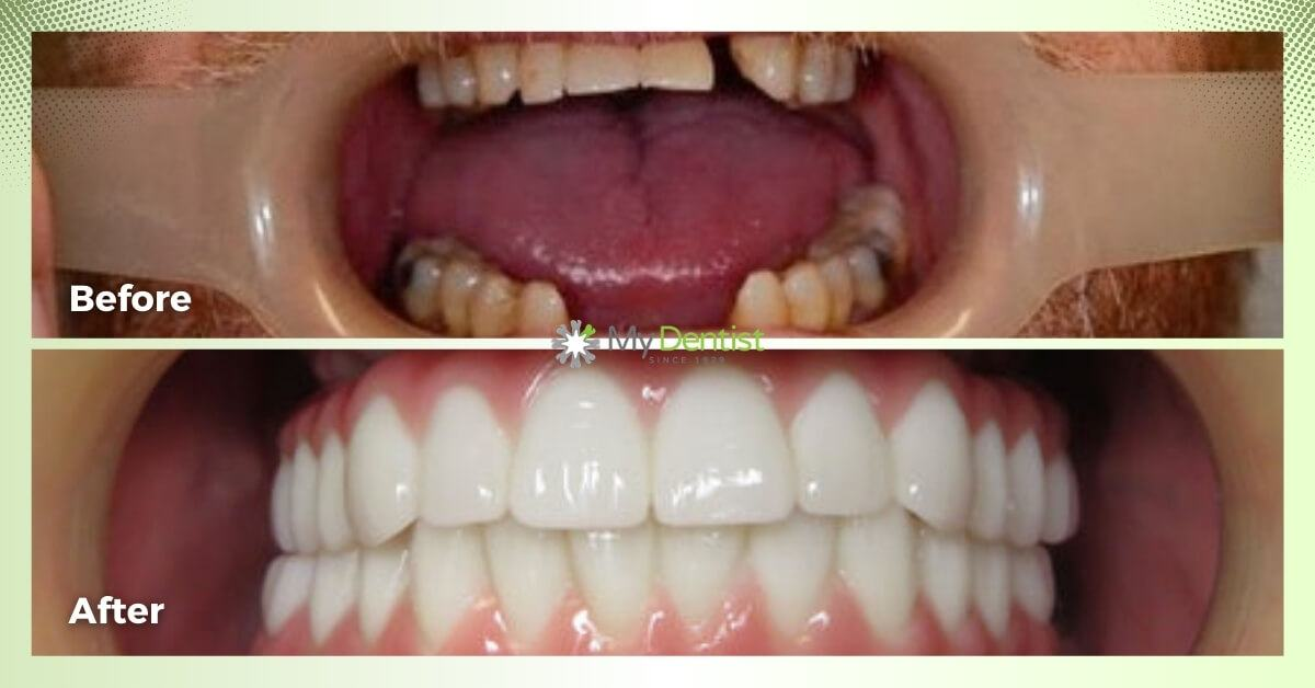 Lyle-Smile-Makeover_My-Dentist_Alderley_Before-and-After-Images-1