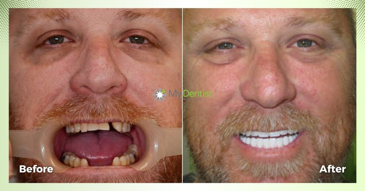 Lyle-Smile-Makeover_My-Dentist_Alderley_Before-and-After-Images