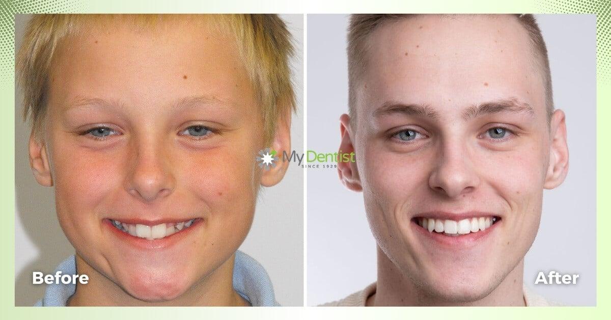 Mads-Smile-Makeover-Journey_My-Dentist_Alderley_Before-and-Images-1