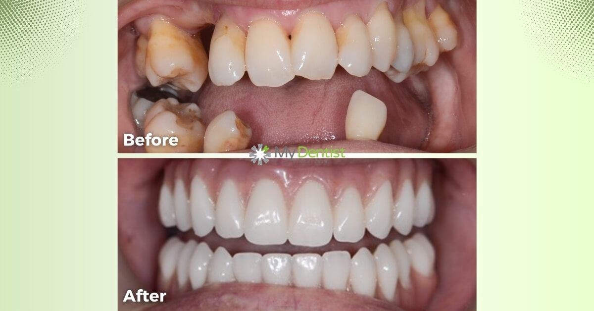 Mina-Smile-Makeover_My-Dentist_Alderley_Before-and-After-Images-1