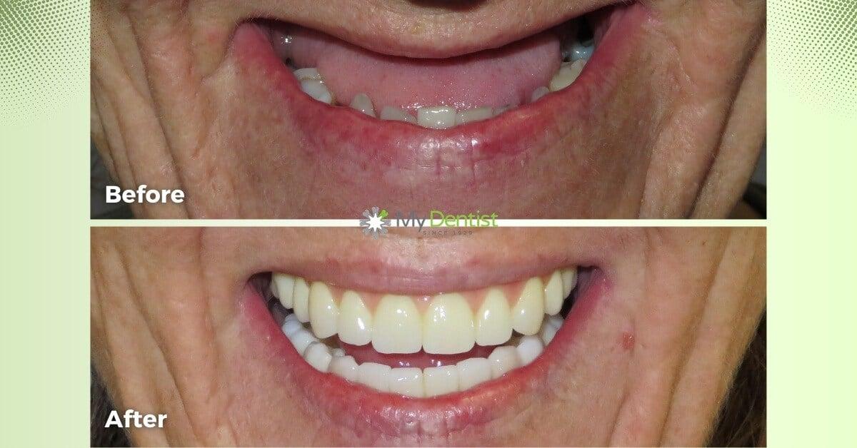 Susan-Smile-Makeover-Journey_Alderley_My-Dentist