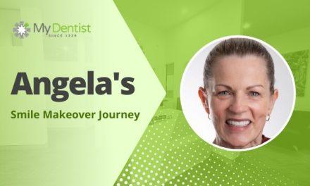 Angela's Smile Makeover Journey