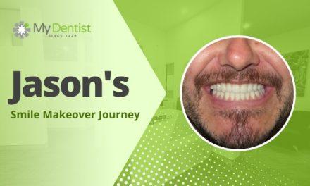 Jason's Smile Makeover Journey