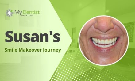 Susan's Smile Makeover Journey