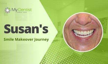 Susan's Smile Makeover Journey