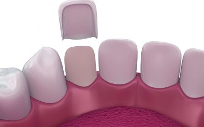 Can Dental Veneers Be Repaired?